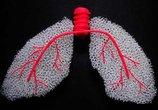肺癌已成中国第一癌,帮你计算一下得了肺癌还能活多久