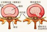 腰椎间盘突出症到底可不可以做推拿治疗?
