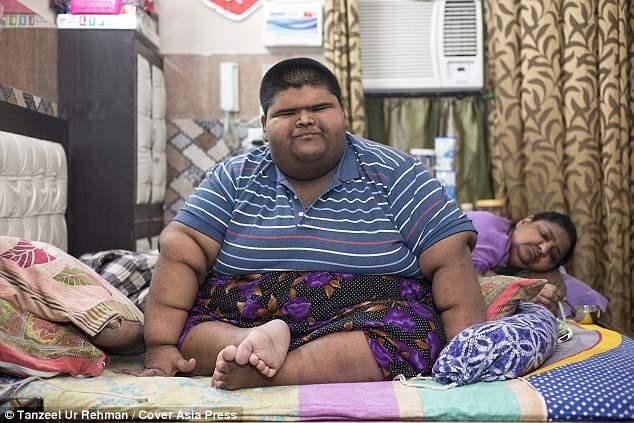 世界最重男孩237公斤 手术后2个月成功减去64公斤