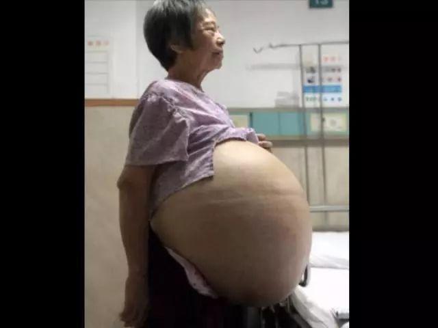 """广州69岁大妈肚鼓如球 术后抽出30多升""""墨汁"""""""