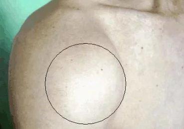 """21岁小伙入院, 医生: 肩膀里有190颗""""珍珠"""""""