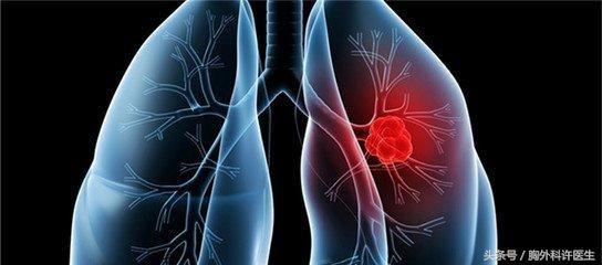 血液肿瘤指标正常,就不会得肺癌吗?