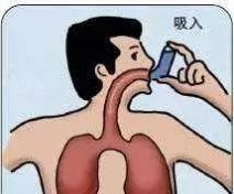 「健康说」哮喘长期吸入激素治疗,这样对孩子有影响吗?